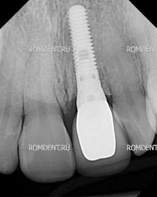 ROMDENT | Имплантационные системы