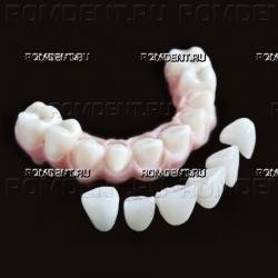 ROMDENT | Конструкции на имплантах