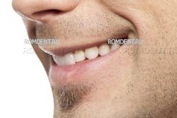 ROMDENT | Эстетическая стоматология и ортодонтия