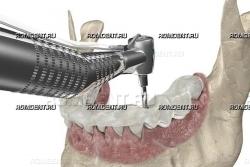 ROMDENT | Хирургический шаблон