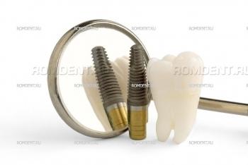 ROMDENT | Установка зубных протезов на импланты — Имплантация зубов под ключ