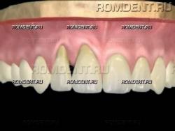 ROMDENT | Чувствительность зубов