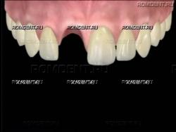 ROMDENT | Протезирование одного зуба