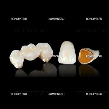 ROMDENT | Зубная металлокерамика