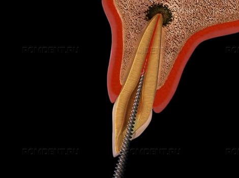 ROMDENT   Хронический периодонтит: лечение и его особенности