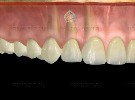 ROMDENT   Лечение воспалившегося зуба инновационными методами