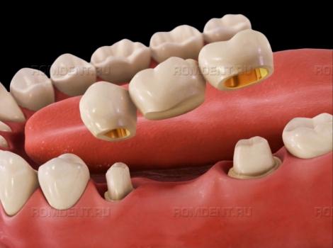 ROMDENT   Несъемное протезирование зубов: какие конструкции выбрать