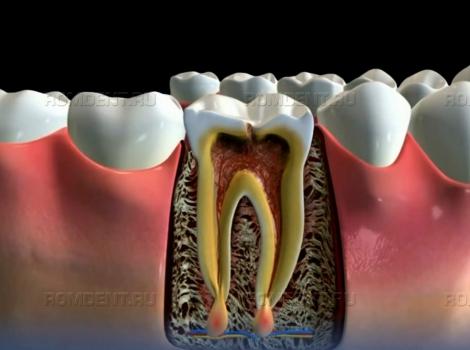 ROMDENT   Периодонтит корня зуба — лечение, методы, особенности