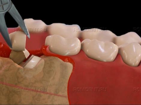 ROMDENT   Удаление нижних зубов у профессионалов