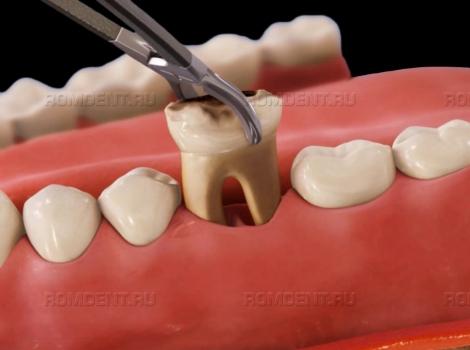 ROMDENT   Удаление зубов под наркозом: для кого и как?