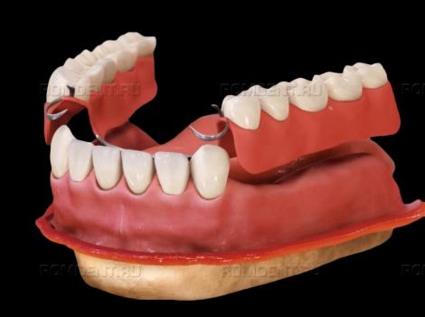 ROMDENT   Установка съемных зубных протезов: преимущества и недостатки